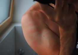 Psoriasis, enfermedad que ataca la piel y puede acabar con tu autoestima